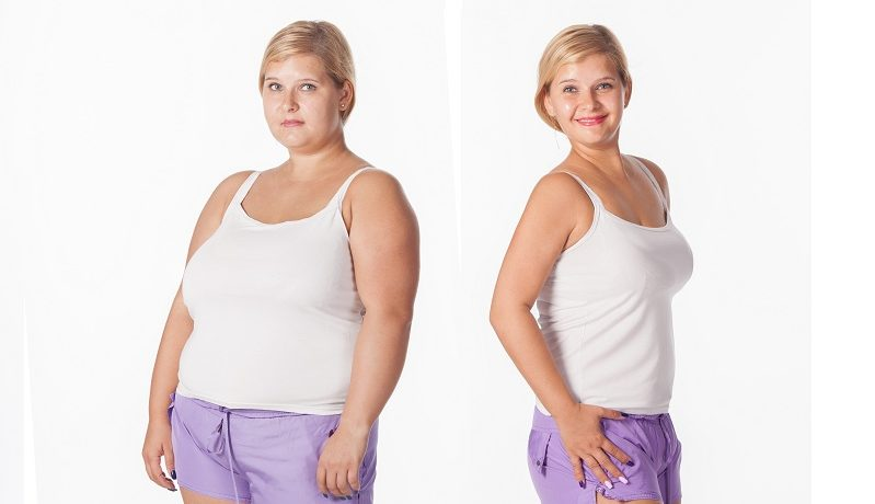 How to lose weight without surgery?